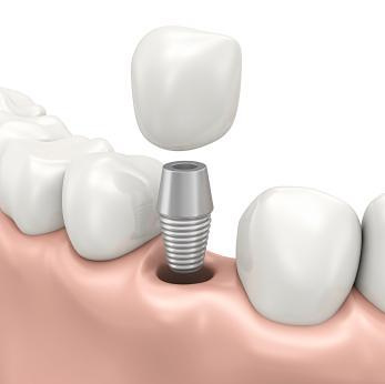 illustration of dental implant | dentist in saint paul mn