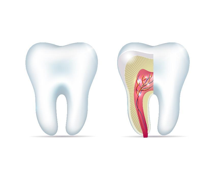 Diagram of tooth with infected root at Saint Paul dentist office