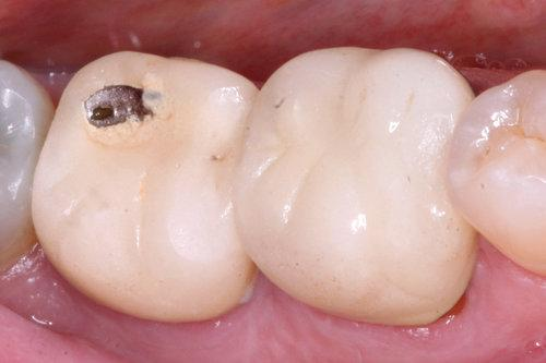 chipped tooth before crown | Dentist saint paul mn