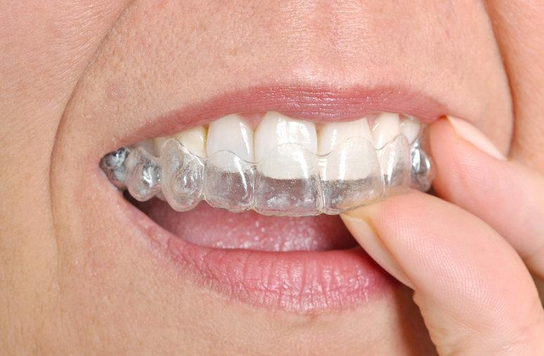 Woman using clear aligners | Dentist Highland Park