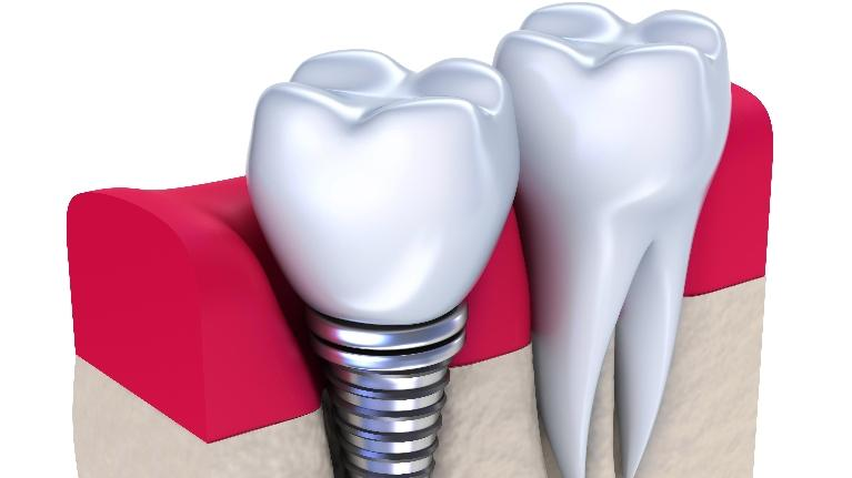 Biggest Benefits of Dental Implants | Nick Schulte, DDS